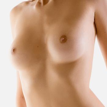 Brustvergrößerung in Kassel