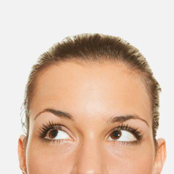 Stirnlift reduziert Falten - Noahklinik
