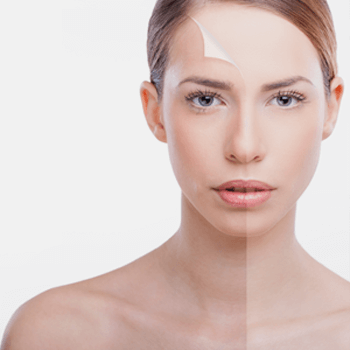 Dermabrasio zur Hautverjüngung in der Noahklinik
