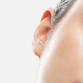 Abstehende Ohren anlegen lassen